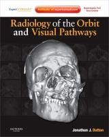 Radiology of the Orbit and Visual Pathways