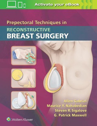 Prepectoral Techniques in Reconstructive Breast Surgery