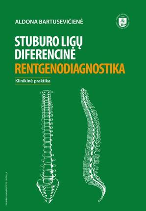 Stuburo ligų diferencinė rentgenodiagnostika
