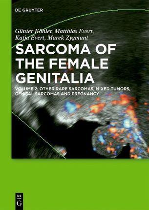 Sarcoma of the female genitalia 2