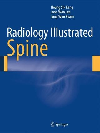 Radiology Illustrated: Spinal Imaging