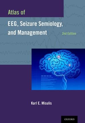 Atlas of EEG, Seizure Semiology, and Management