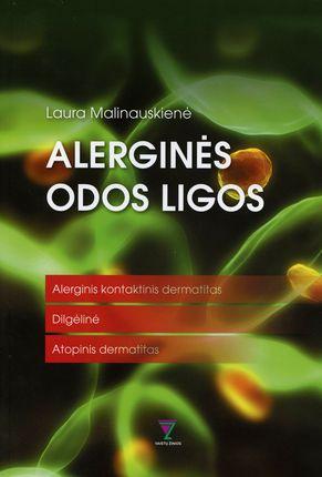 Alerginės odos ligos