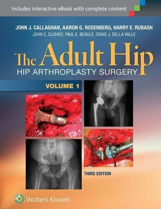The Adult Hip: Arthroplasty and Its Alternatives