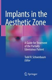 Implants in the Aesthetic Zone