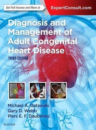 Diagnosis and Management of Adult Congenital Heart Disease
