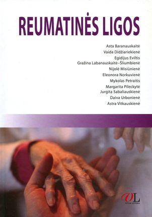 Reumatinės ligos