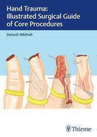 Hand Trauma: Illustrated Surgical Guide of Core Procedures