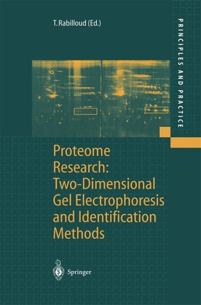 Proteome Research: Two-Dimensional Gel Electrophoresis and Identification Methods